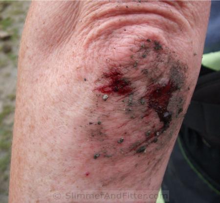 Bashed elbow